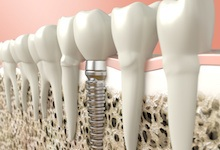placed dental implant and crown