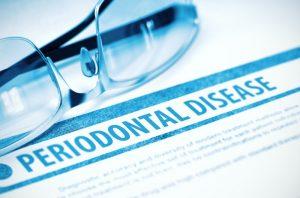 periodontal disease diganosis