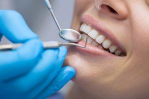 Woman's smile after dental bonding in Crookston